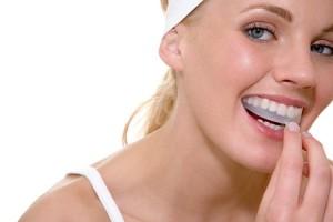 Отбеливаем зубы без визита к врачу