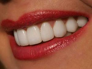 5 советов, как отбелить зубы