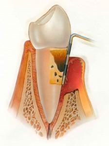 Когда болят зубы: парадонтит и парадонтоз, разбираемся вместе.