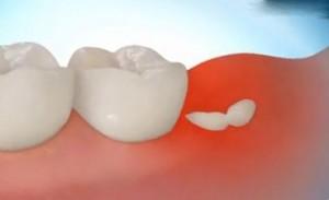 Зубы мудрости – ошибка природы или жизненная необходимость
