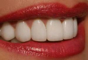 Восстановление эмали зубов: новые возможности