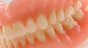 Современные зубные протезы: обзор последних разработок
