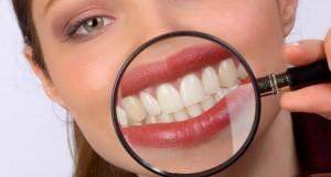 Новая зубная паста вылечит кариес за 3 часа