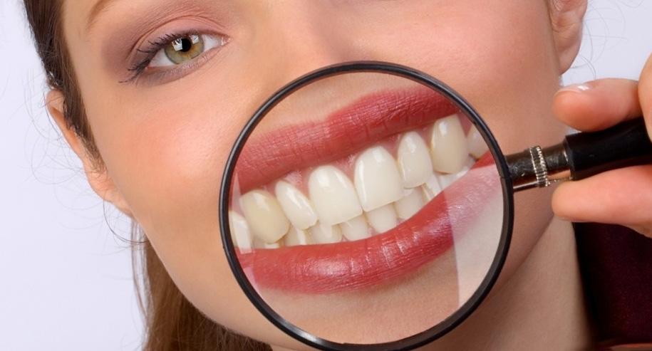 Как отбелить зубы в домашних условиях если есть кариес