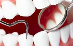 Симптомы и лечение клиновидного дефекта зубов