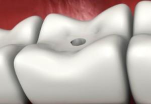 Стадии развития и симптомы кариеса