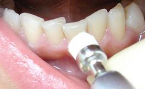 В США отбеливание зубов разрешили проводить даже без диплома стоматолога