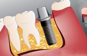 Имплантация: новые зубы