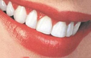 Ослепительная улыбка или методы отбеливания зубов