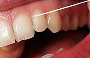 Для чего нужна зубная нить?