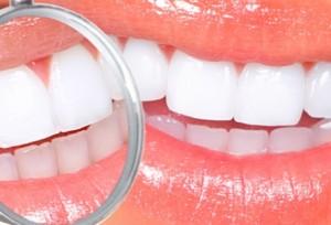 Факторы, влияющие на эффективность отбеливания зубов