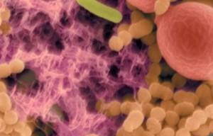 Бактерия, которая вызывает гингивит, может руководить иммунной системой