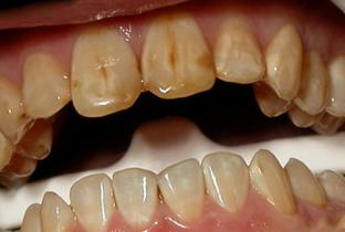 отбеливание зубов в салоне красоты отзывы
