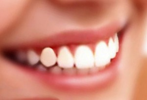Методы предупреждения заболеваний полости рта