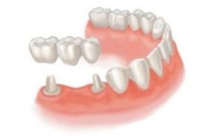 Зубные мосты – важная часть стоматологического протезирования