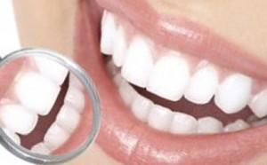 Дисколорит зубов: распространенная и многофакторная по природе патология